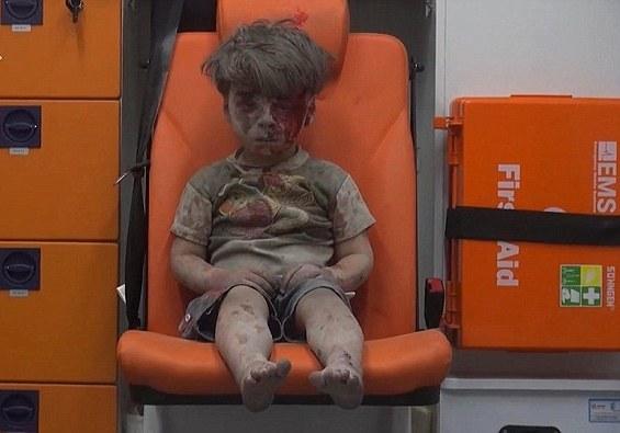 Kamēr visa pasaule juta līdzi šim Sīrijas puisītim,viņa brālis nomira no ievainojumiem