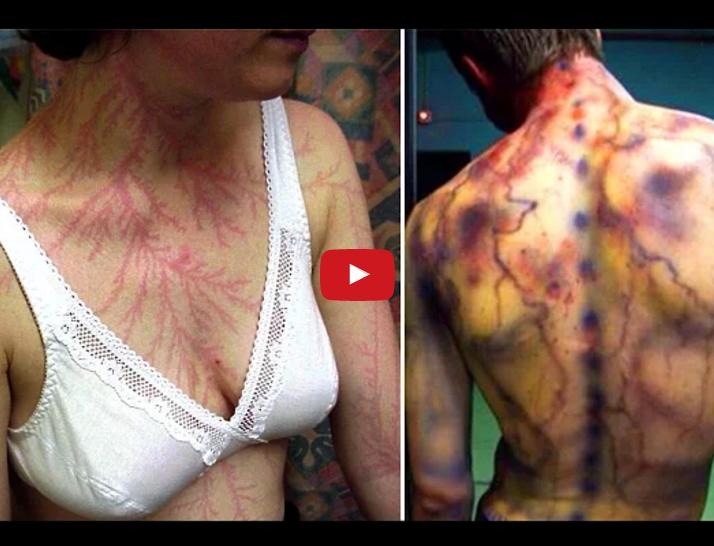 Kā izskatās cilvēki pēc tam, kad viņiem iesper zibens (VIDEO)