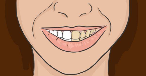 Šādi daru katru reizi pirms zobu tīrīšanas. Esmu aizmirsusi kā izskatās mans zobārsts