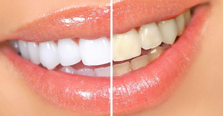 Gribat nostiprināt un izbalināt zobu emalju? Lūk, kāda Tibetas mūka recepte!