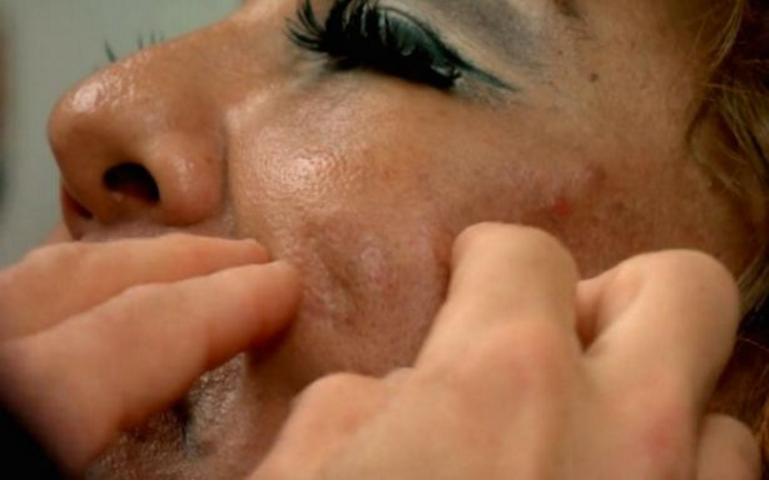 Sievietei sejā tika injicēts cements- paskaties, kā viņa izskatās tagad, pēc 10 gadiem