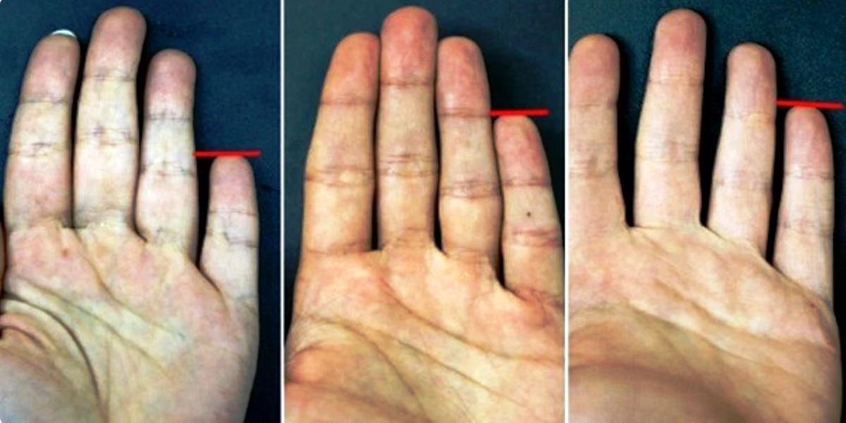 Mazā pirkstiņa garums – tas spēj daudz pateikt par tavu raksturu. Uzzini, ko tas pasaka…