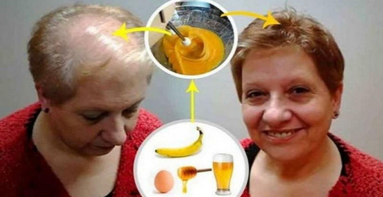 Viņa izmantoja banānu un alus losjonu, lai veicinātu matu augšanu! Jūs neticēsiet rezultātiem…