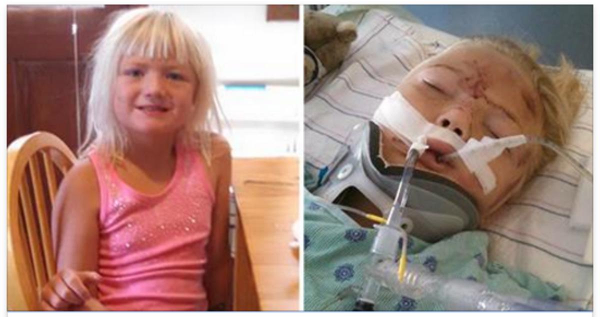 Viņas sešus gadus vecajai meitiņai drošības josta pārgrieza vēderu – sieviete aicina vecākus obligāti lietot bērnu sēdeklīšus!