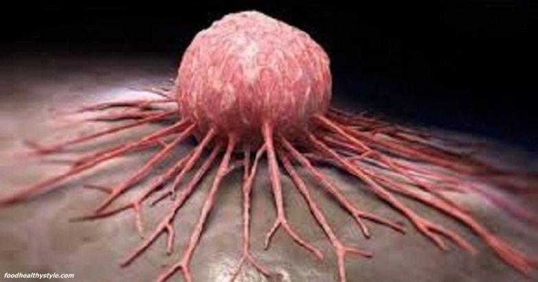 7 produkti, kuri sāk nogalināt vēža šūnas tikko tu tos sāc ēst