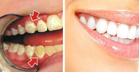 Esiet paši sev zobārsti! Lūk, kā noņemt zobu aplikumu vien 5 minūtēs!
