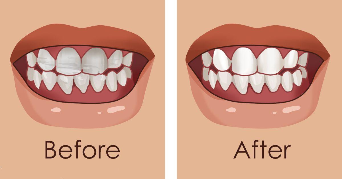 8 lieliski superēdieni, kas stiprinās tavus zobus un novērsīs emaljas bojāšanos