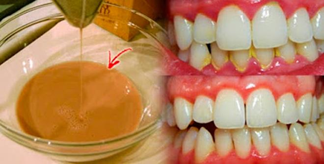 Šis mutes skalošanas šķidrums atbrīvos jūs no zobakmens un aplikuma, tikai 3 minūtēs. Jau steidzos izmēģināt…