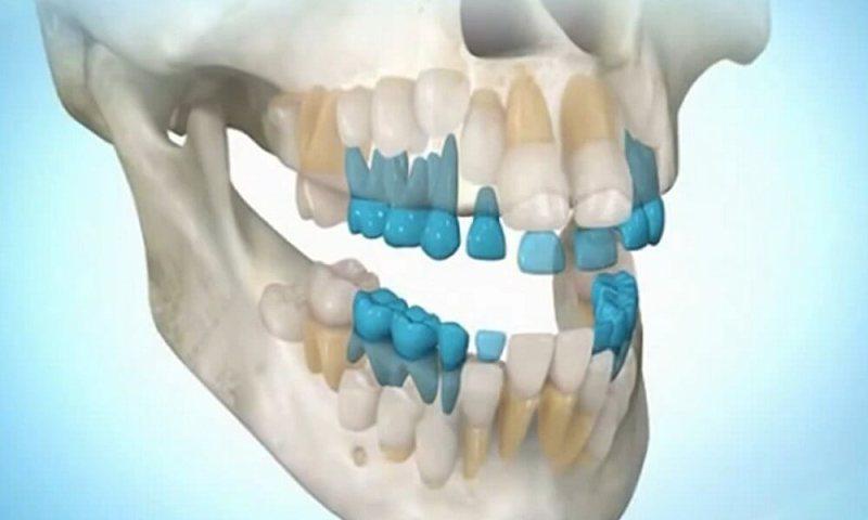 Neticams stomatoloģijas profesoru atklājums: jūs varat izaudzēt paši sev zobus vien 9 nedēļu laikā