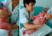 Sieviete dzemdēja 18 kg smagu mazuli. Kā tev liekas, cik sver pati mamma?