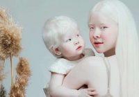 Šīs māsas ir albīnes, kurām ir divpadsmit gadu starpība, ar savu neparasto izskatu iekarojušas visu internetu